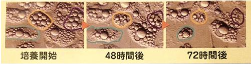脂肪細胞分解