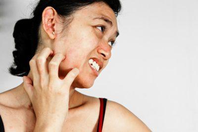 弱った肌は使い慣れた化粧品でも「湿疹」を起こす