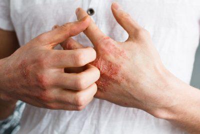 アトピー性皮膚炎やアレルギー症状の改善