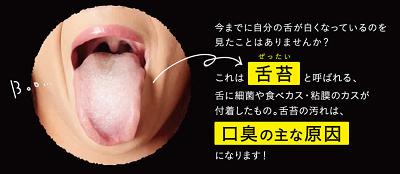 口臭の原因は舌苔にあるってホントなの?