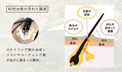 haru黒髪スカルプ・プロの見た目年齢-5歳の秘密は?